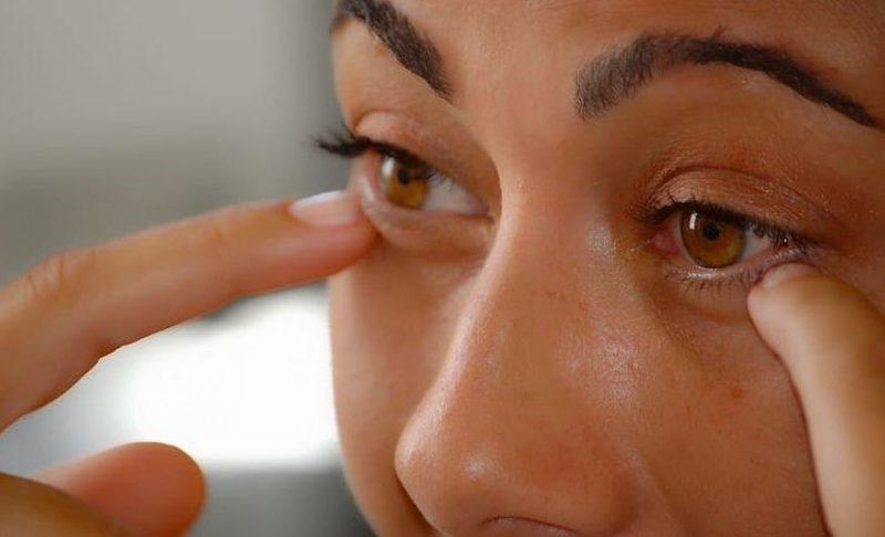 Bagaimana Cara Menghilangkan Kantung Mata
